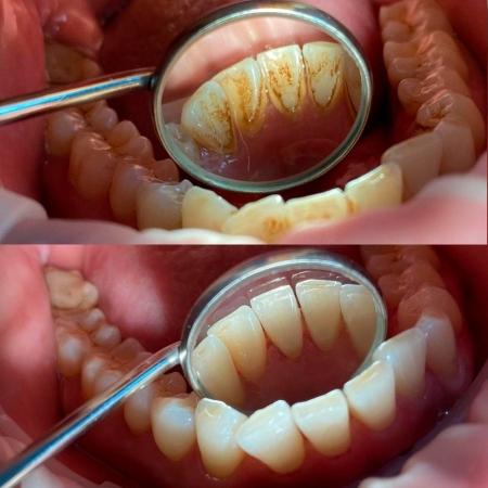 Фото до и после гигиенической чистки зубов