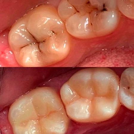 Лечение кариеса 6 и 7 зубов