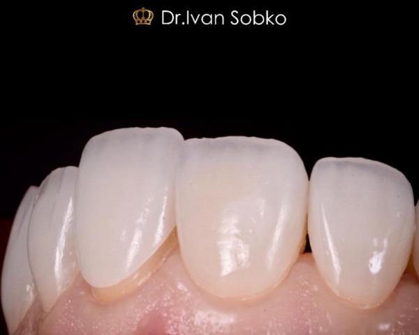 Установка керамических виниров E-max на зубы